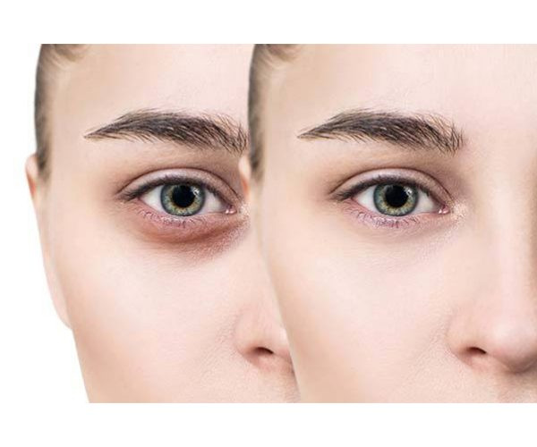 Get Rid of Dark Circles with just Two Ingredients